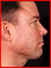 ניתוחים פלסטיים לגברים (לפני ואחרי) (10 תמונות)